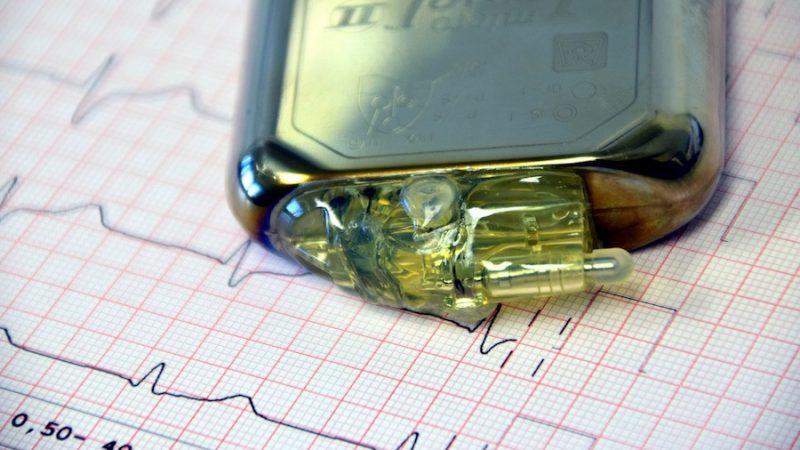 Gerdas pacemaker skenar